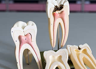 Models of teeth